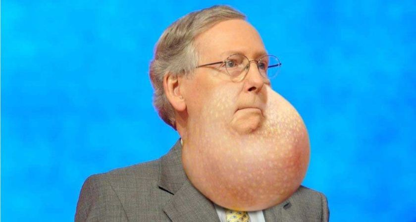 McConnell jowl